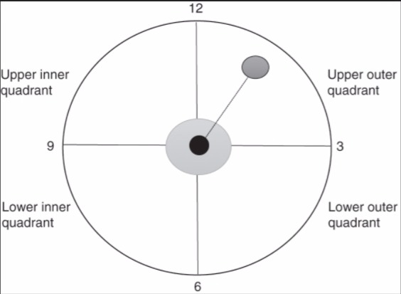 Upper outer quadrant of the right breast