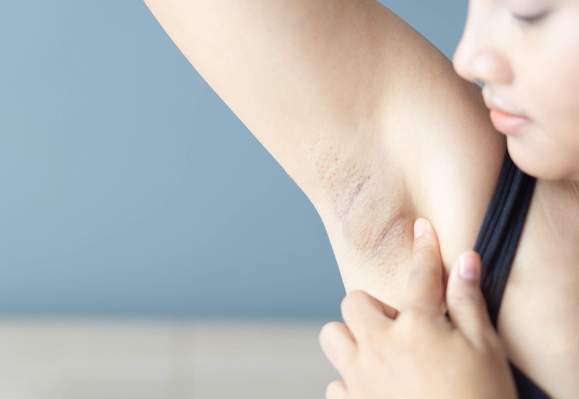Symptoms lump breast fatigue uti headache fever