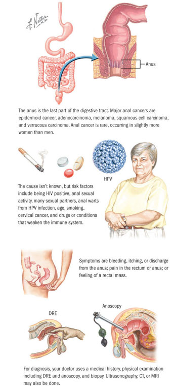 What are the symptoms of anal cancer