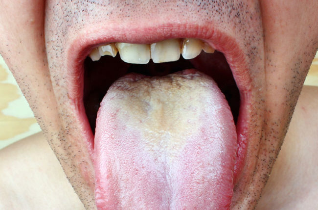 Can you have oral sex yeast infection