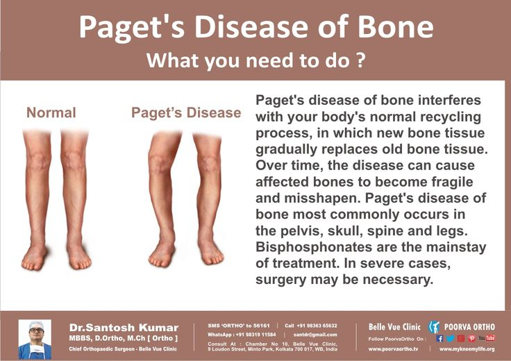 Compare normal breast to paget s disease