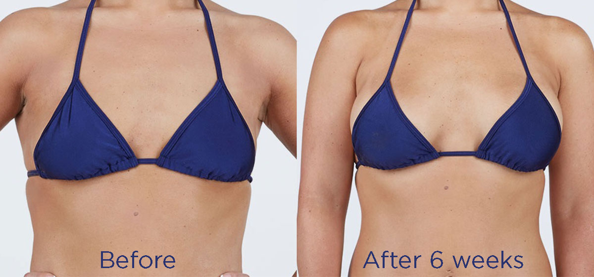 Breast implants before and after by size