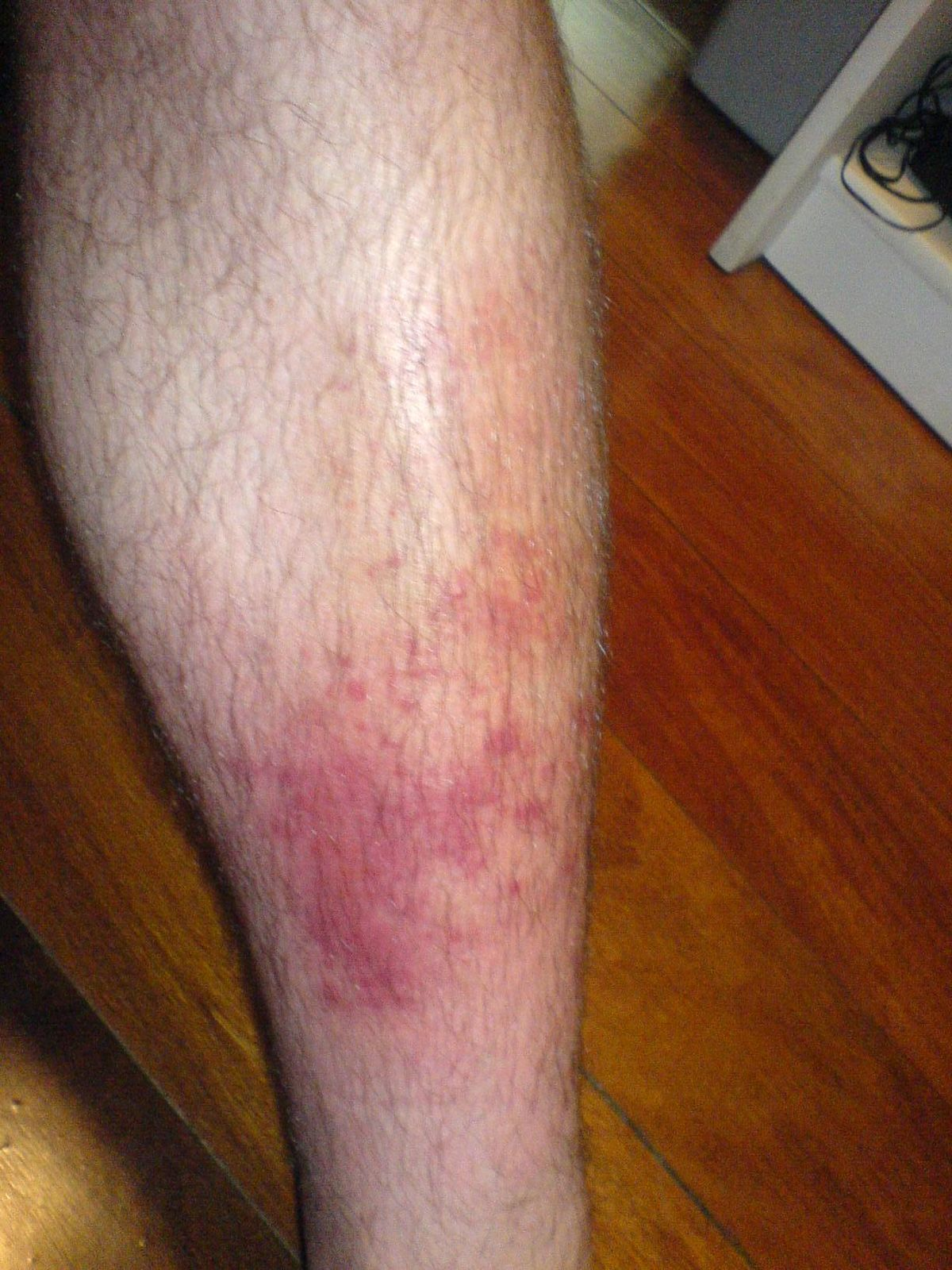 Anal strep itching burning rash on thighs