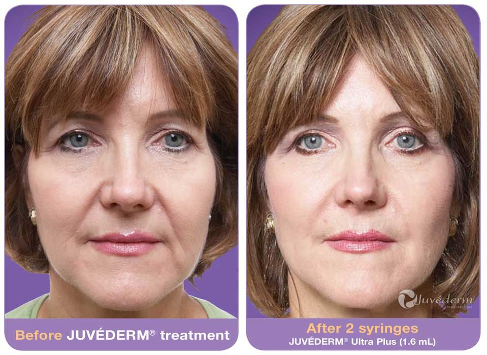Find facial laser treatment clinic in illinois