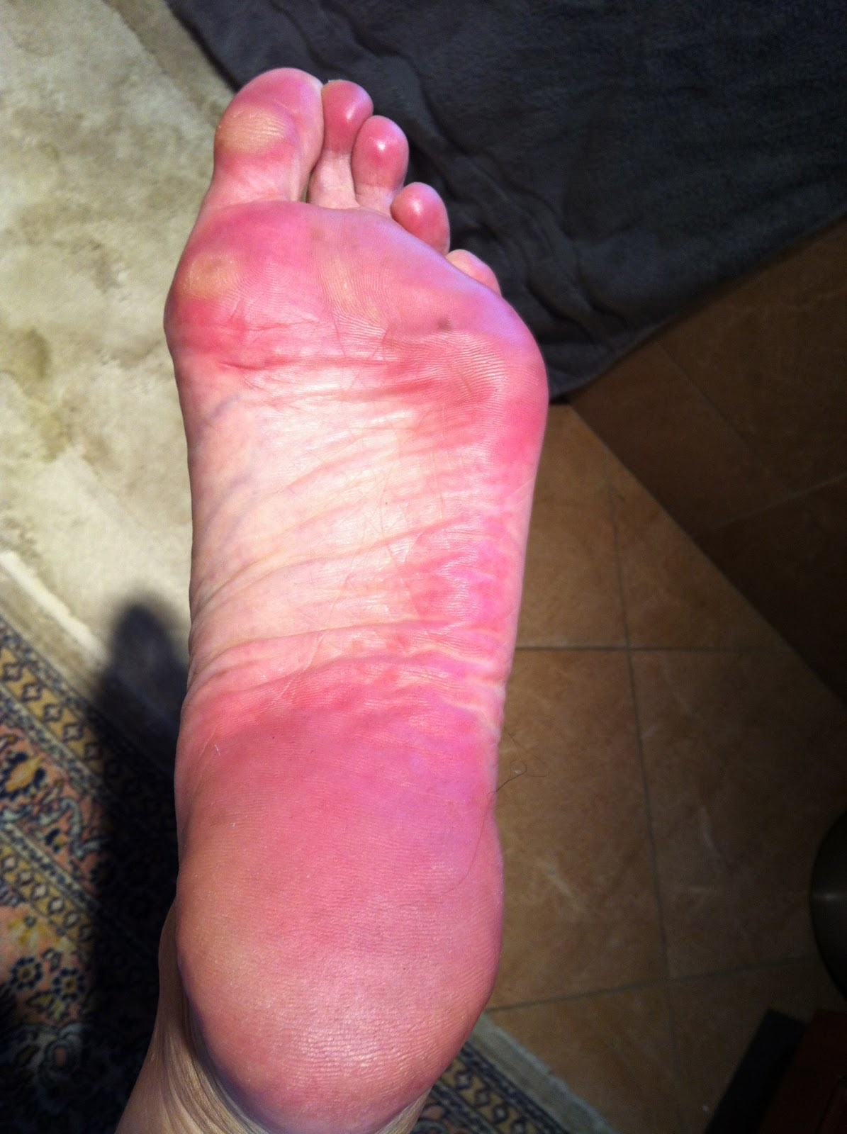 Rough discolored skin on bottom of foot