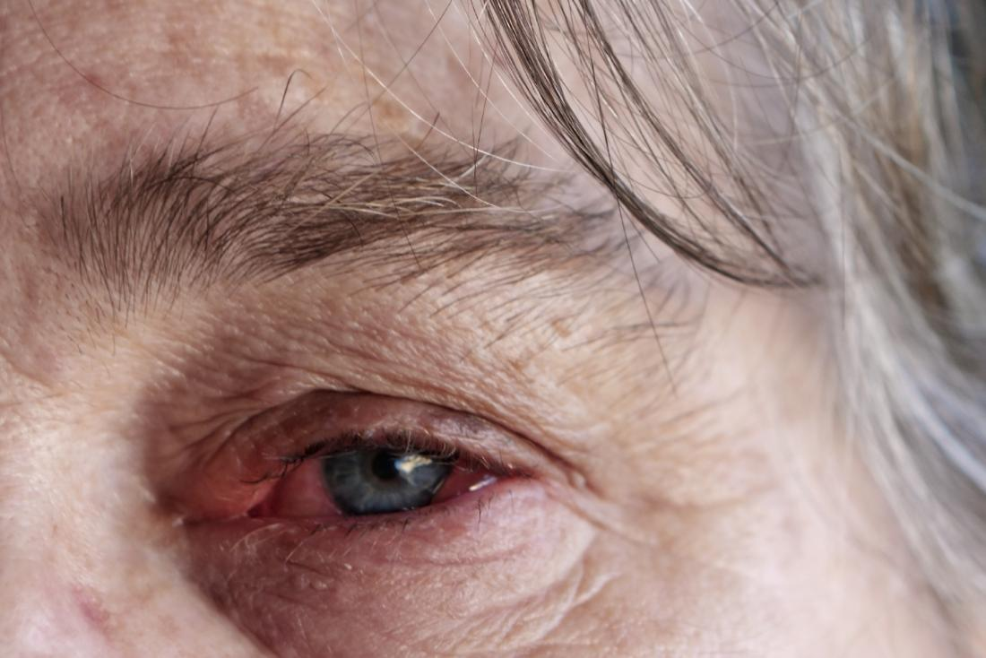 Pink eye and ear infection in adults