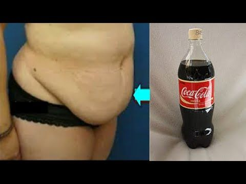 How to get rid of coke bloat