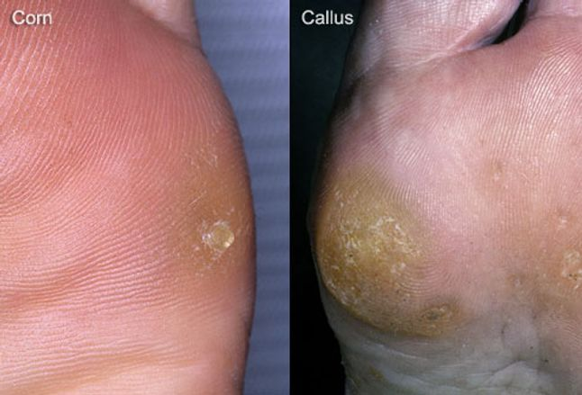 Problems on the bottom of the foot