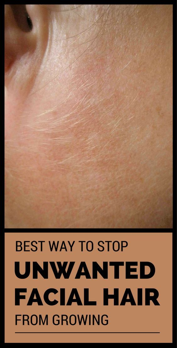 How to stop facial hair from growing