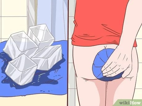How do you prepare for anal sex