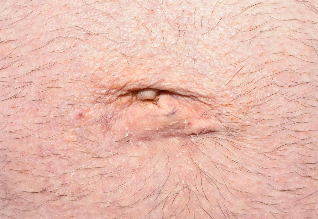 Hernia in belly button area in adults