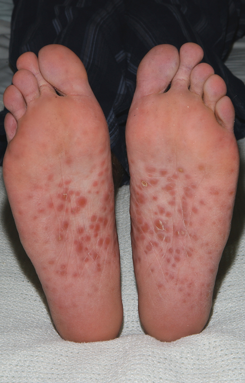 Itching on the bottom of the feet