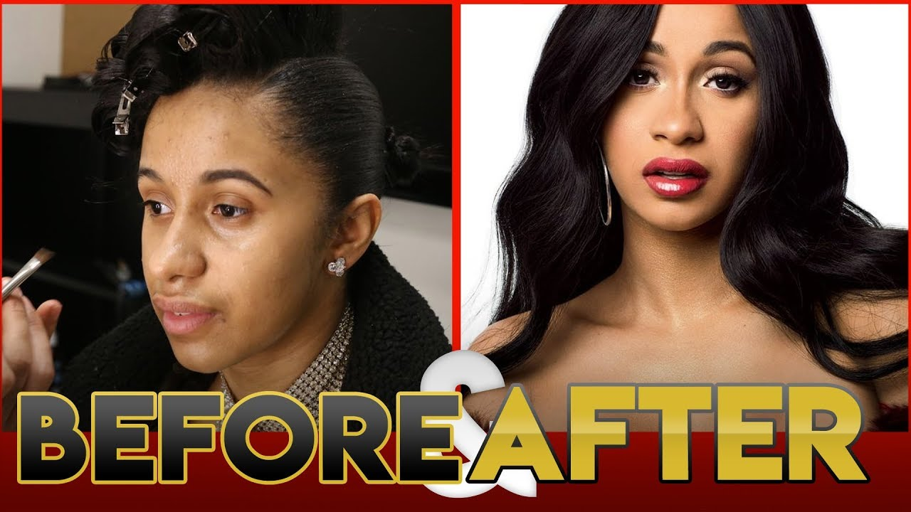 Cardi b before and after teeth pics