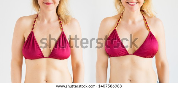Breast augmentation photos before and after photos
