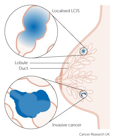What causes thickening of the breast tissue