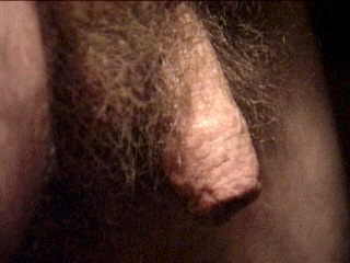 How to remove hair from penis shaft