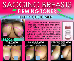 How to firm and tone sagging breast