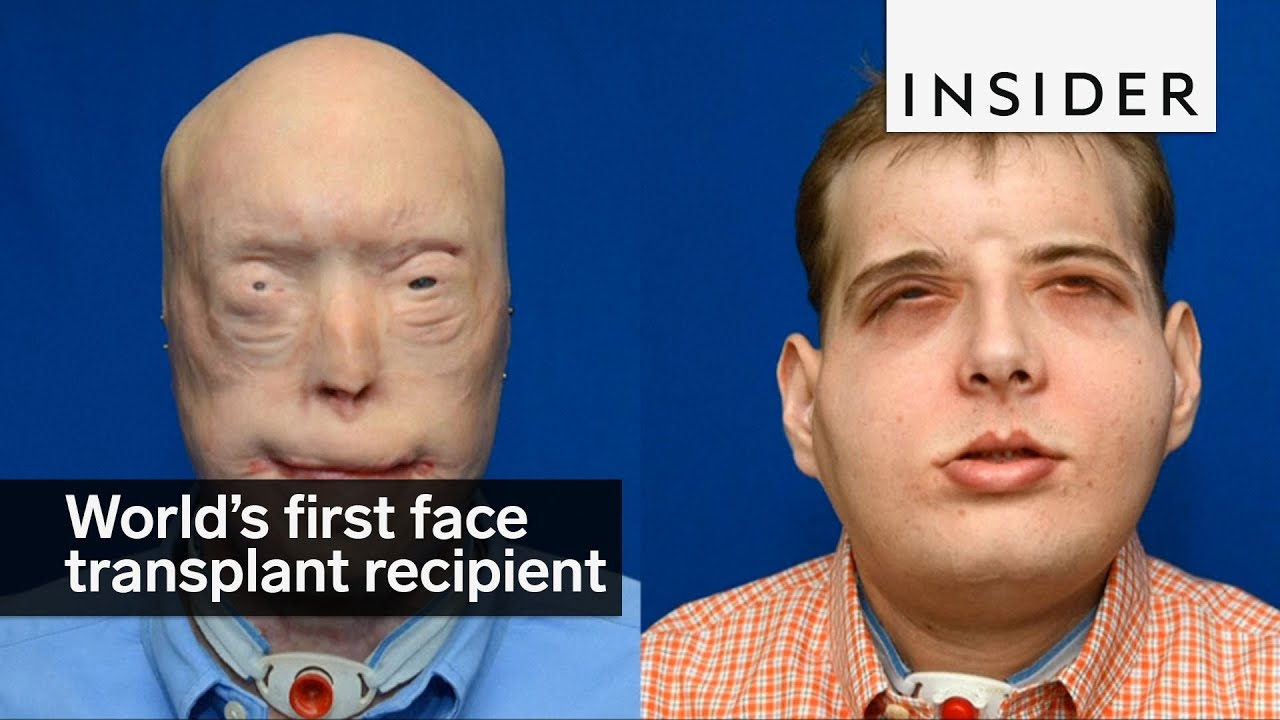 World s first facial transplant by ghafour