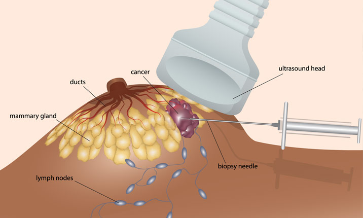 How to perform a breast cancer biopsy