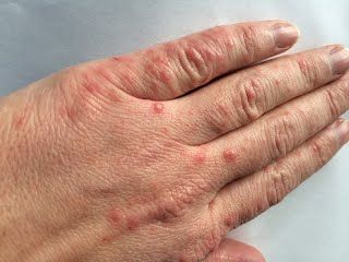Hand foot and mouth in adults cure