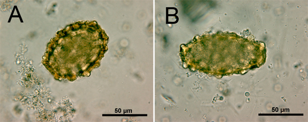Ascaris lumbricoides n vaginal wet prep examination