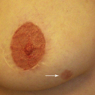 Pictures of breast with paget s disease