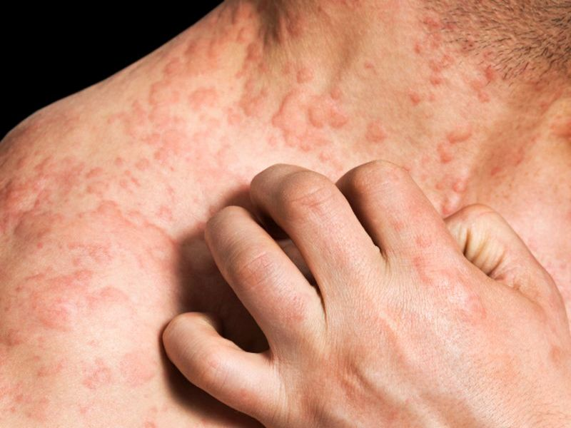 Can you get eczema as an adult