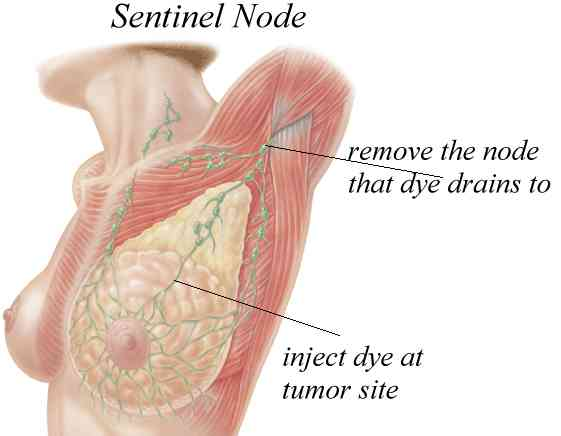 Sentinel lymph node biopsy in breast cancer