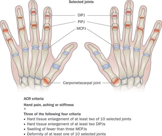 Enlargement of proximal interphalangeal joint of thumb