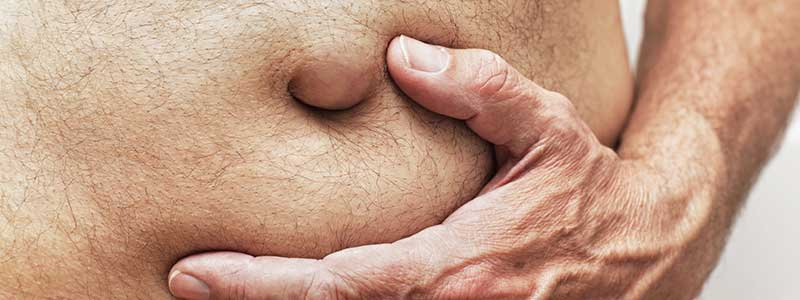 Can umbilical hernia heal itself in adults