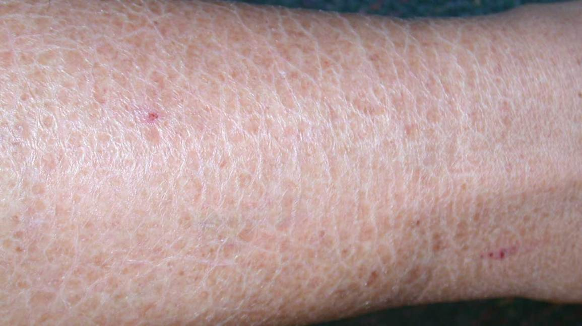 Anal strep itching burning rash on thighs