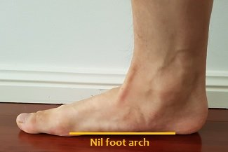 I have no arch in my feet