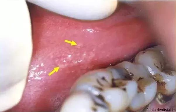 Bump on inside of lip of vagina