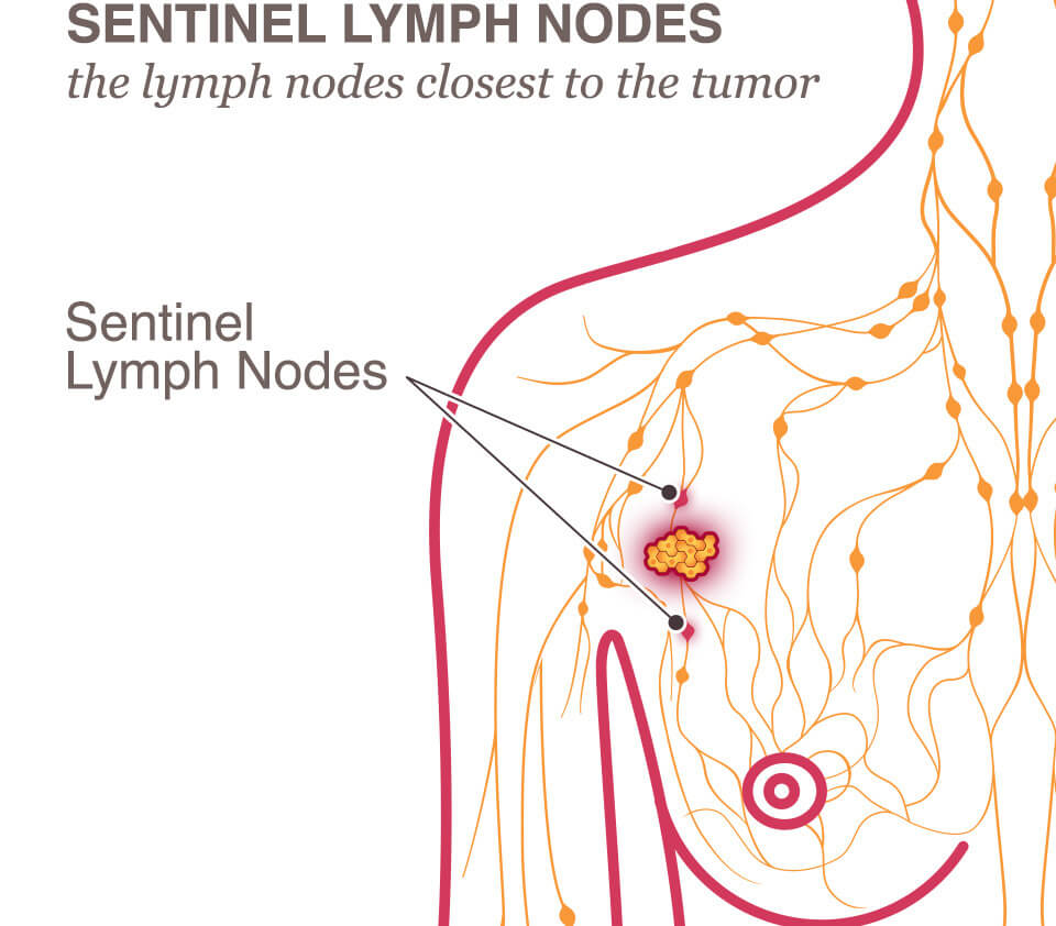 Breast cancer in one sentinel lymph node